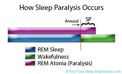 Sleep Paralysis Causes