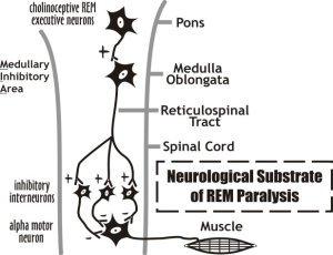 REM Paralysis, or REM Atonia