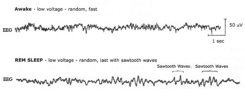Brain activity recordings awake versus during REM sleep
