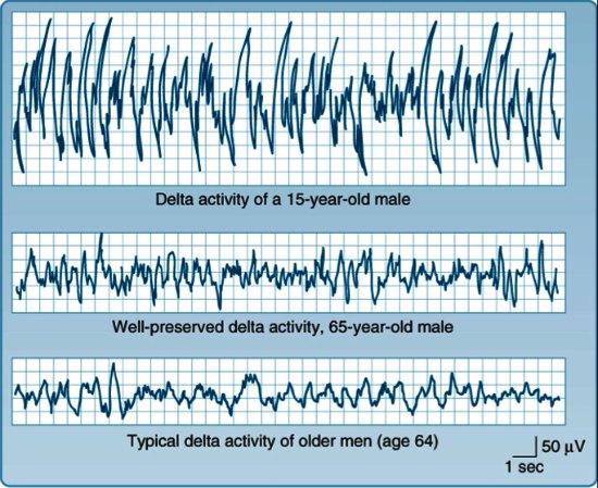 Graph showing lower amplitude delta waves in elderly