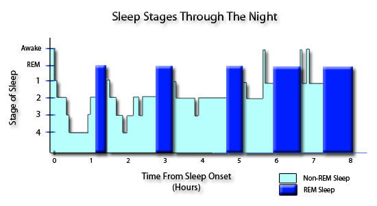 Graphical representation of the five stages of sleep