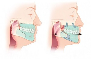 MMA Surgery Maxillo Mandibular Advancement Diagram