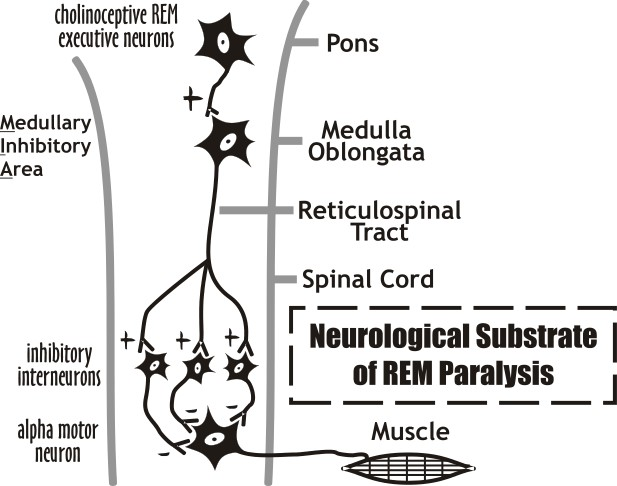 REM Paralysis, or REM Atonia