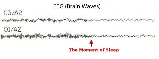 Sleep Onset Brain Waves