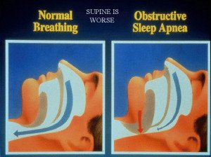 Picture of normal breathing vs. breathing with obstructive sleep apnea