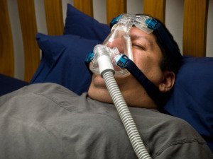 Picture of Sleep Apnea and Obesity with CPAP